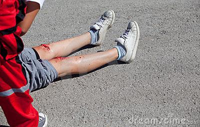 legs-injuries-22179963